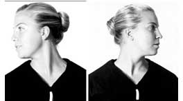Neck Exercises after Surgery